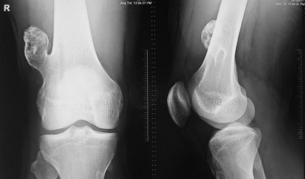 What is a bone growth on leg?