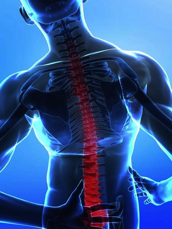 What is the life expectancy of patients with ankylosing spondylitis?