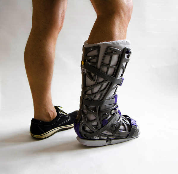 Is it ok to use a boot cast for sprained ankle?