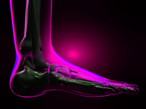 How can you tell if ankle is sprained or broken?