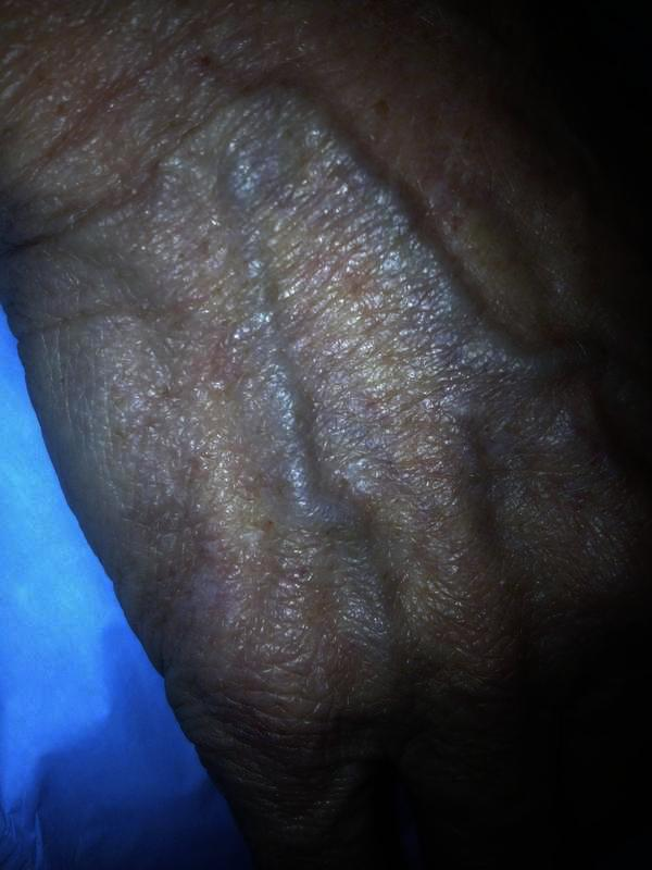 How to get rid of obvious veins on your hands and how to prevent them?