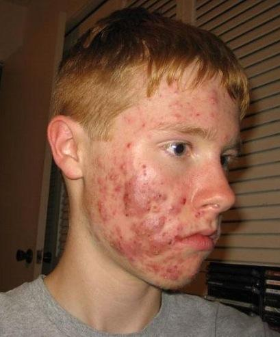 Does nodulocystic acne occurs only during the twenties  and reduces post thirty?