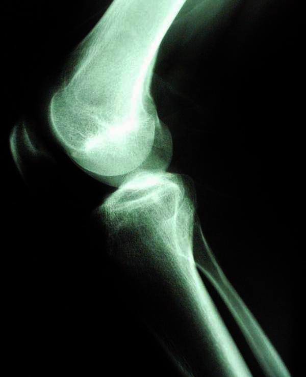 What can cause knee pain? My friend having pain ver a year now . Some times it hurts really bad.