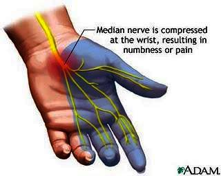 I have pain on the right side of my palm wrist area radiating up my arm is this carpal tunnel ?
