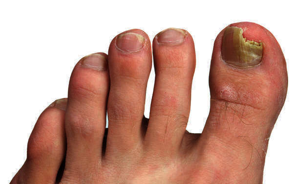 I have a fungal infection on the left foot and the big toe nail.What should I do?