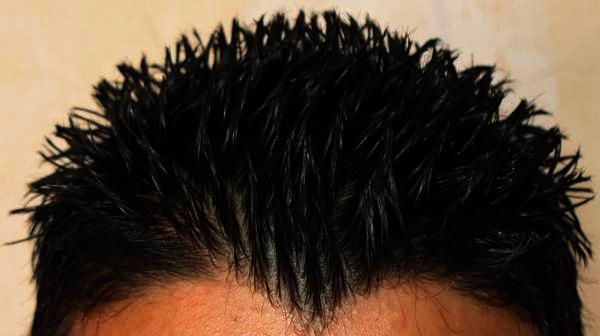 How could I make my hair stop thinning were can I get some good vitamins?