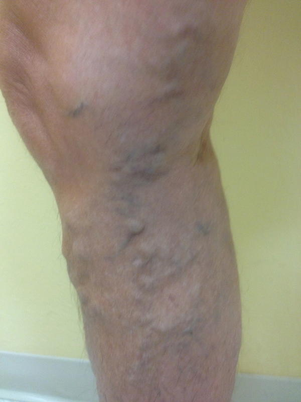 I have spider veins on both legs and have severe knee and leg pain, also the veins swell up and causes it to be hard to sit, stand, and walk.