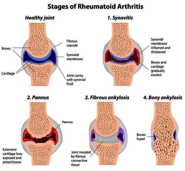 What is jra vs rheumatiod arthritis?