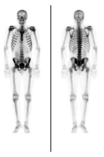 What does a healthy bone scan look like?