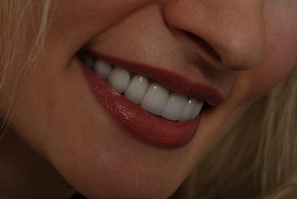 Can you have composite veneers on your bottom teeth?