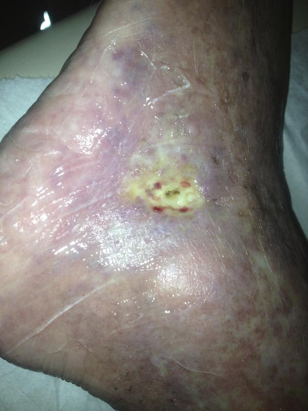 I was wondering how I could heal a wound from vein surgery near my ankle?