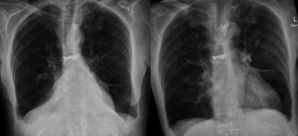 Do people ever have a pneumothorax and atelectasis at the same time?