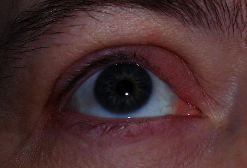 How can I cure a stye on my eyelid?