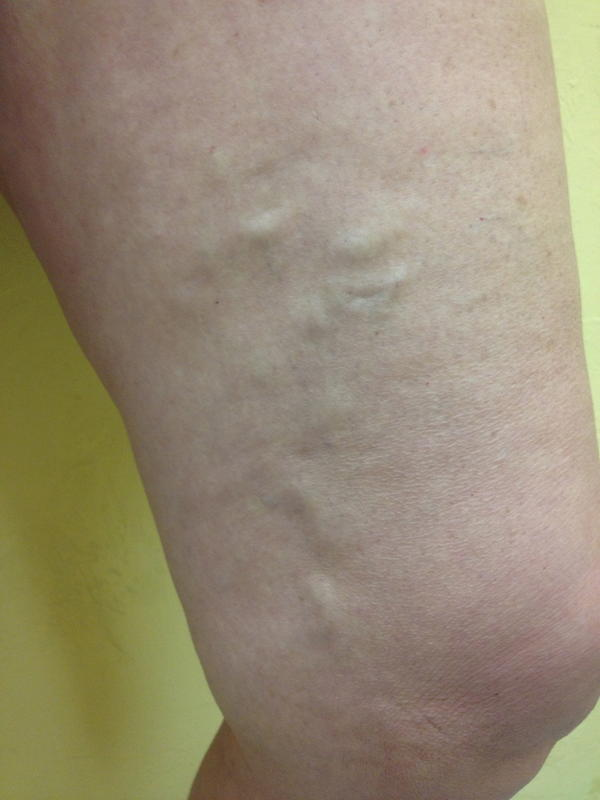 Spider veins on tops of my legs, if i started running (similar exercise) so the blood circulated better would they reduce?