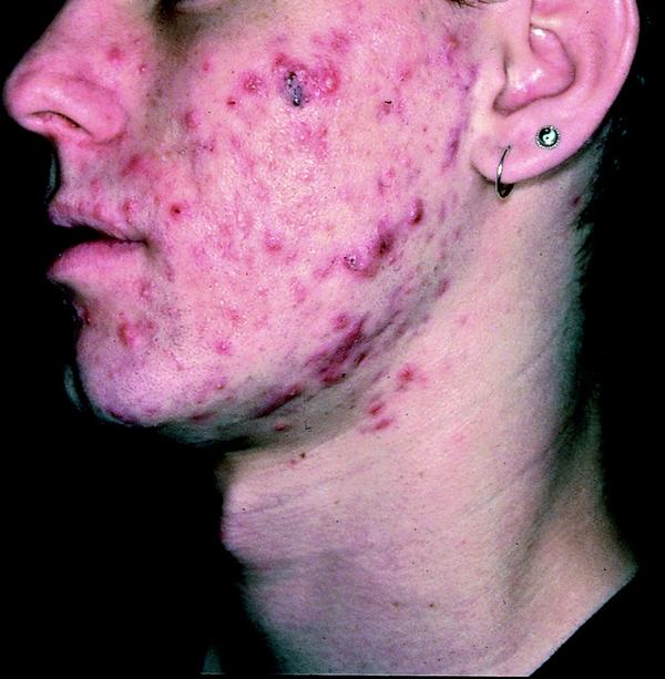 How can you remove persistent cystic acne?