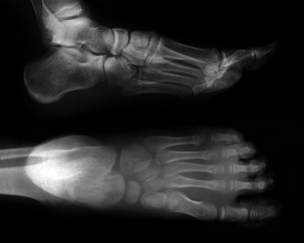 On average, how long will a dislocated toe take to heal?