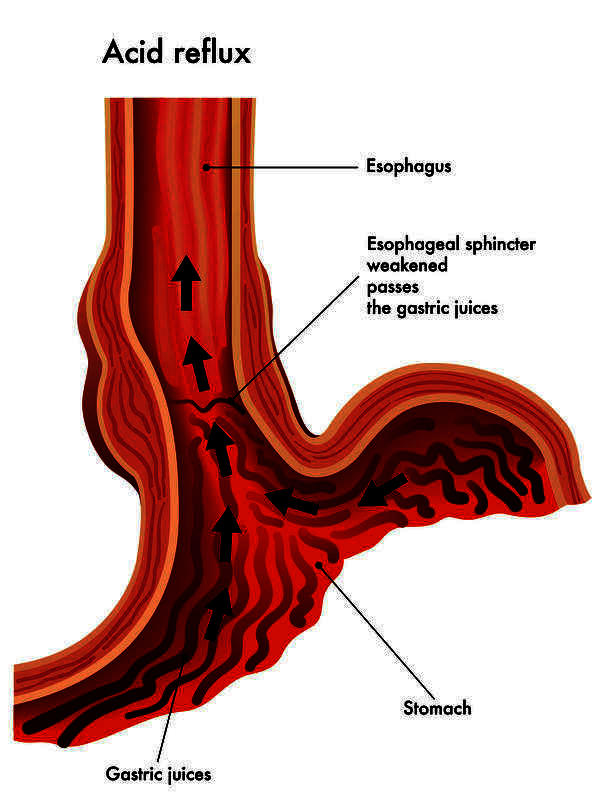 Please help me! I got a very acidy stomach I think its acid reflux tips please thanks?