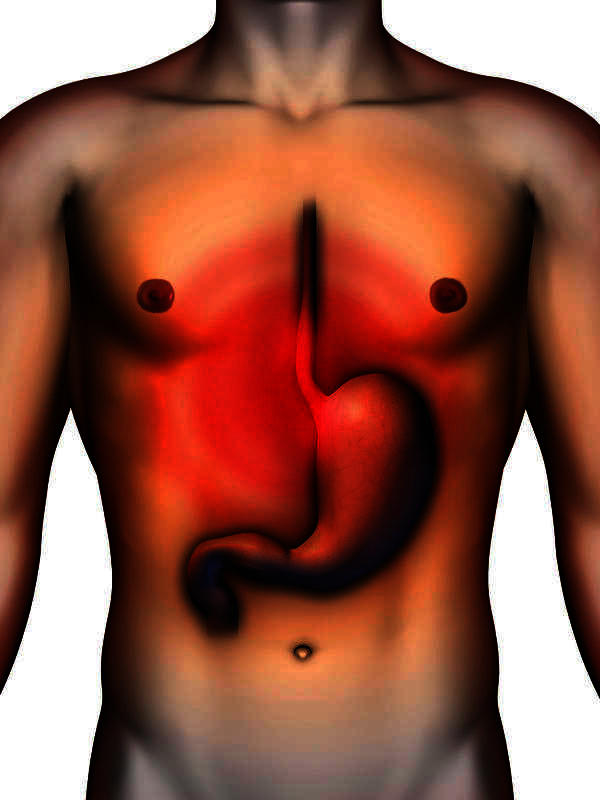 When I have acid reflux, should I vomit to get it out?