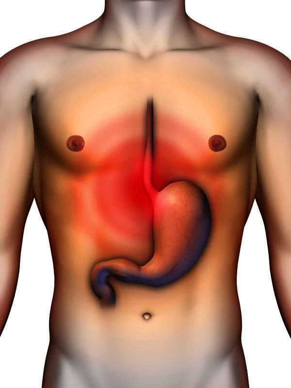 What can be done to stop acid reflux and heartburn?