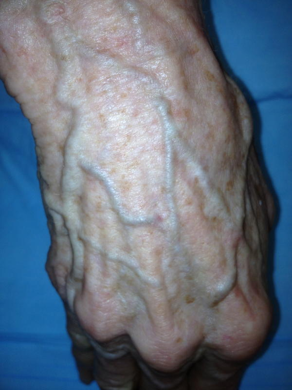 I happen to notice that after taking my hbp medication that the veins on my hand, opposite my palm, enlarge. Could there be a direct connection? Aging