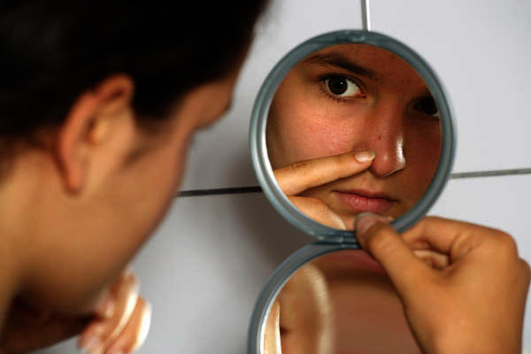 What would doctors do to take care of acne on cheek?