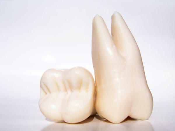 I've extracted my wisdom teeth, what are the precautions I've to do?