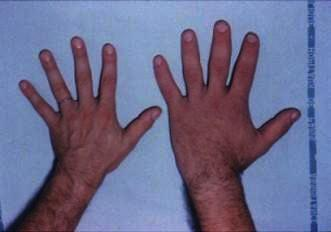 What are signs and symptoms of acromegaly?