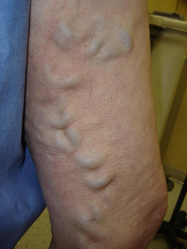 Can your body create new veins?