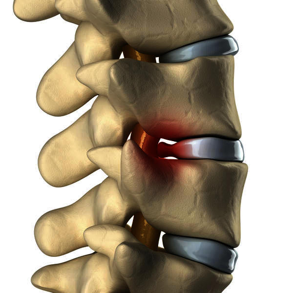Can a cerivcal herniated disk cause numbness and tingling in arms and legs?  If so what is the best treatment?
