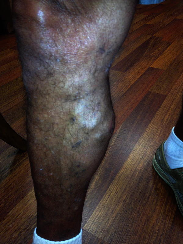 I have bad veins in my legs. Should I have them removed?