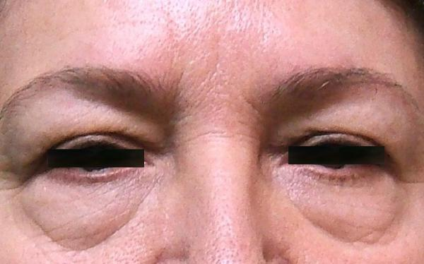I have plenty of sleep and drink plenty of water, and I constantly have dark puffy circles under my eyes. Why are they there and how can I avoid them?