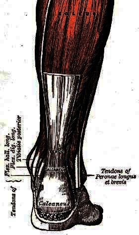 My Achilles tendonitis is so painful I can barely walk and exercise. How long will it take to disapear?