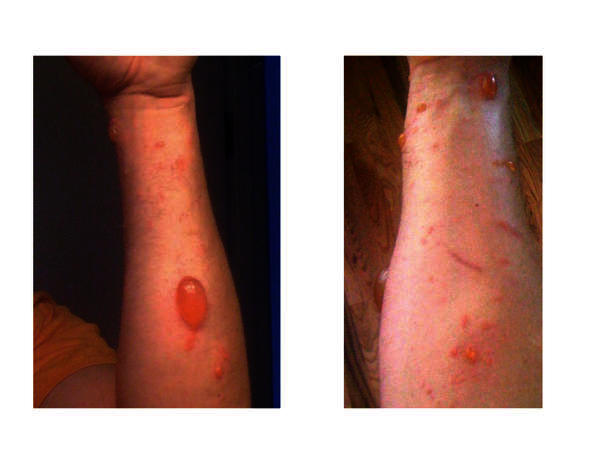 Can you please describe the best ways for getting rid of poison ivy and stop it from spreading (fast)?