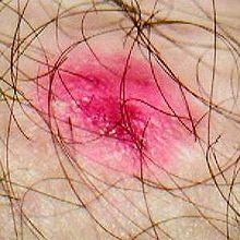 What does mild eczema normally look like?