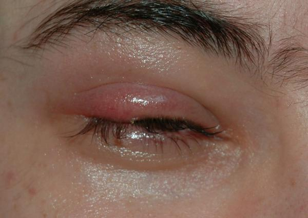 My lower left eyelid is puffy could I have an infection. My eyes look clear and I have no vision problems.?