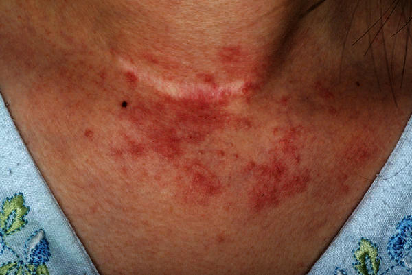 How could i determine which type of eczema i have?