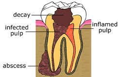 It's been 3 weeks since part one of my root canal and my abscess is still there, but smaller. I don't have anymedicines left. Is it normal?
