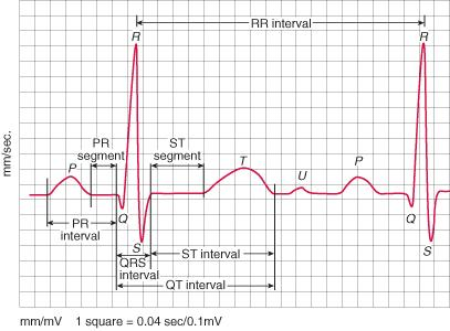 Can an ECG or holter monitor pick up signs of coronary heart disease?