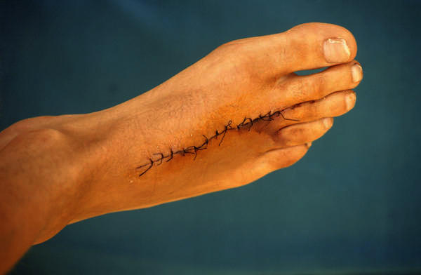 What is the strength of stitches for laceration wounds?