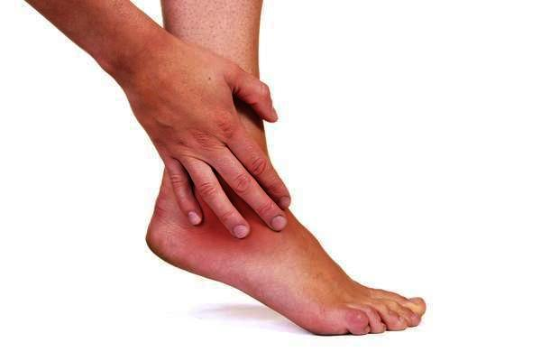 What makes a sprained ankle better?