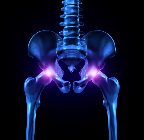 Is celebrex (celecoxib) a good drug for hip pain?