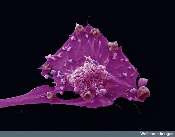 If you have breast cancer and found the lump, what would it feel like?