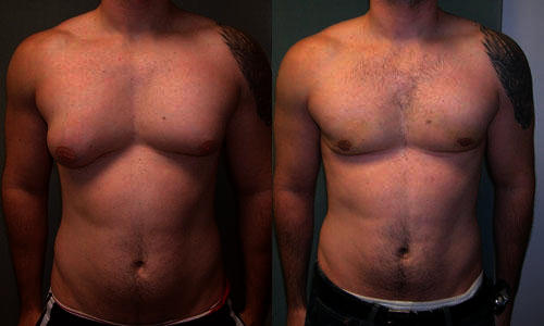 If you notice your chest getting flabby. How do you get rid of small man boobs?