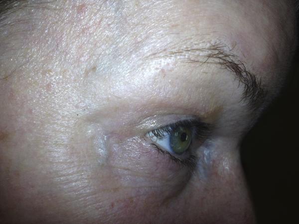 How do I get rid of dark veins under my eyes?