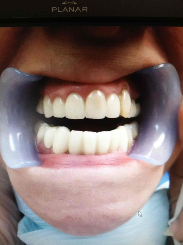 I have a 1 mm (1/2mm yr. Ago) space between my front teeth. Teeth shift later in life? If I do not have periodontal disease what could it otherwise be?