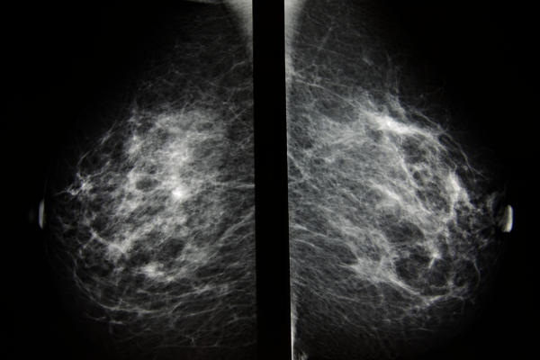 What is the recommended schedule for having mammograms when do not you have breast cancer history in your family?