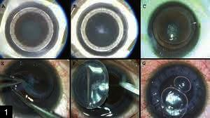 Can you please discuss the connection of diabetes mellitus in keratoplasty?