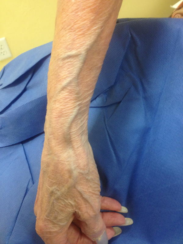 Is it normal to see your veins on your wrist? Are the veins deeper than what they appear?