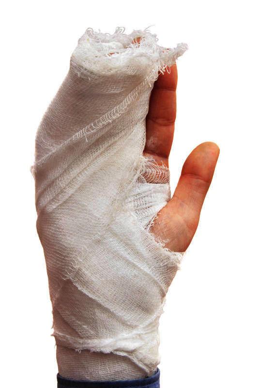 Will broken hands need plaster casts?