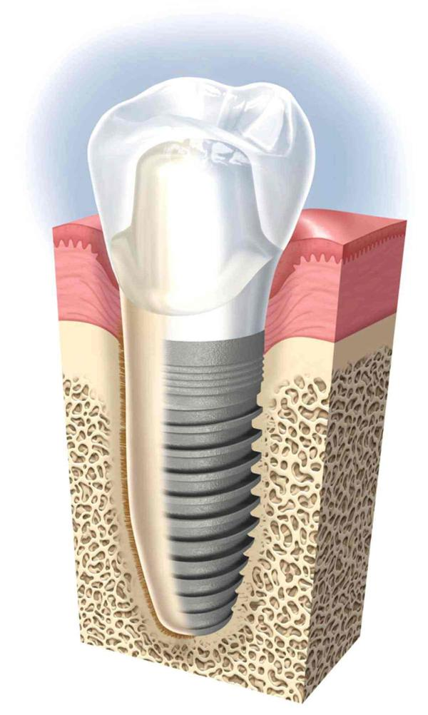 Could you tell me what are dental implants?